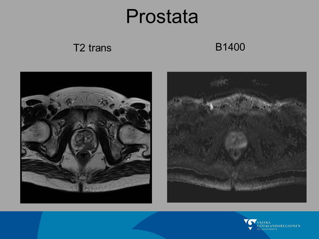Prostata T2 trans B1400