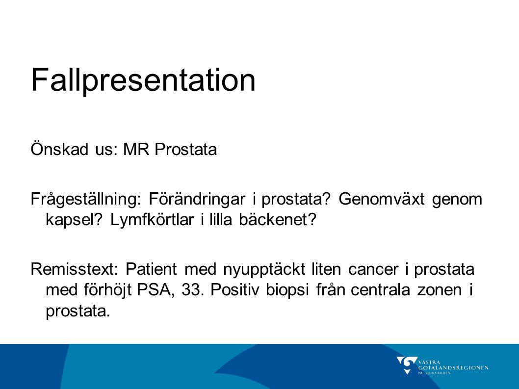 Fallpresentation Önskad us: MR Prostata Frågeställning: Förändringar i prostata? Genomväxt genom kapsel? Lymfkörtlar i lilla bäckenet? Remisstext: Pat