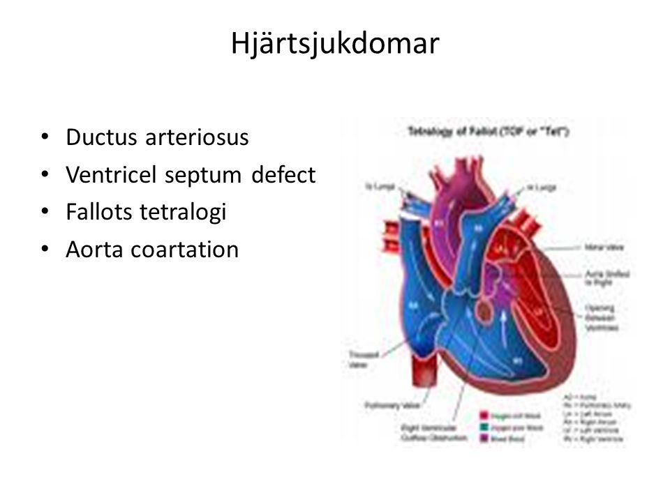 Hjärtsjukdomar Ductus arteriosus Ventricel septum defect Fallots tetralogi Aorta coartation