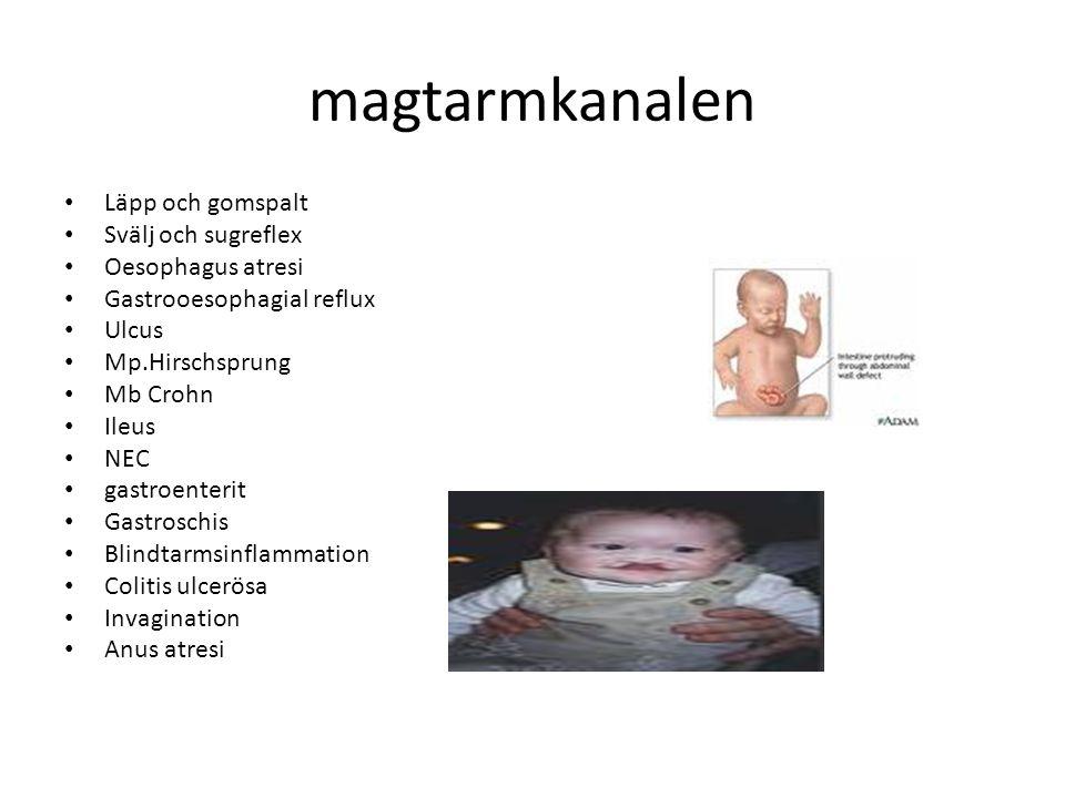 magtarmkanalen Läpp och gomspalt Svälj och sugreflex Oesophagus atresi Gastrooesophagial reflux Ulcus Mp.Hirschsprung Mb Crohn Ileus NEC gastroenterit