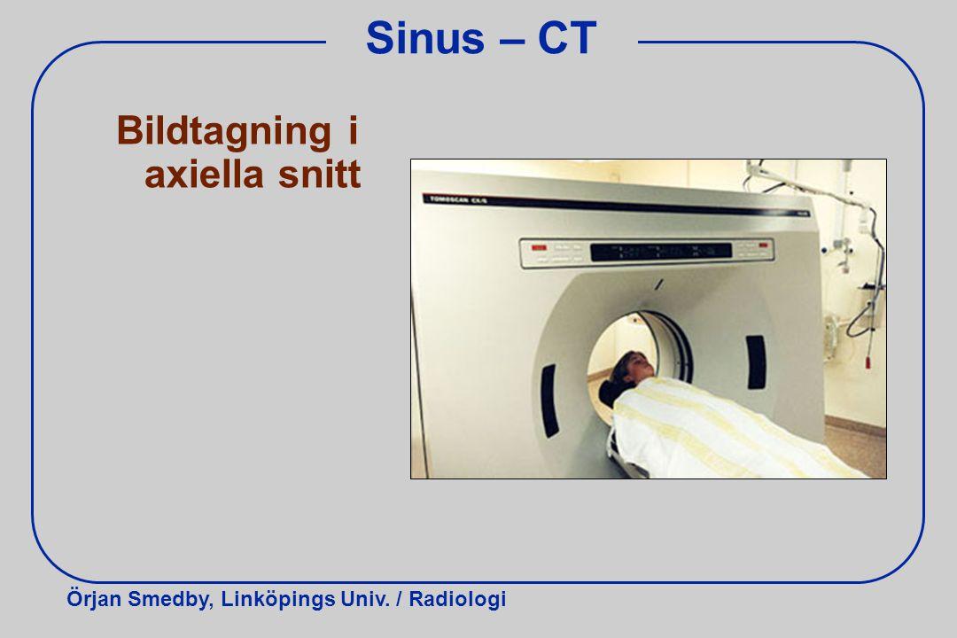 Örjan Smedby, Linköpings Univ. / Radiologi Sinus – CT Bildtagning i axiella snitt