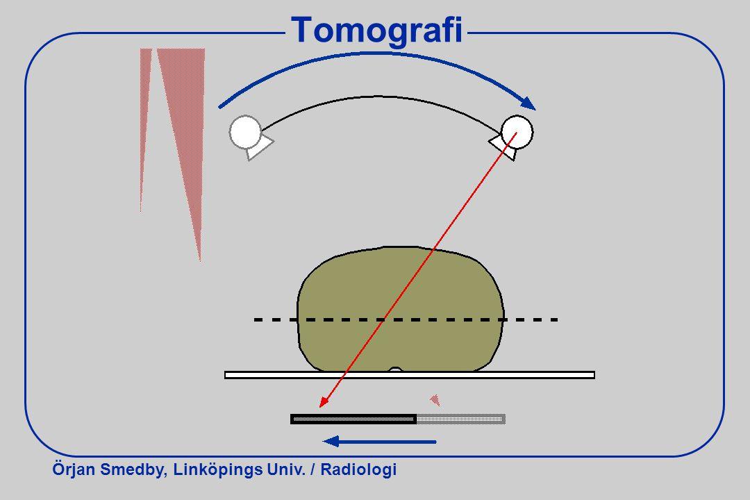Örjan Smedby, Linköpings Univ. / Radiologi Tomografi