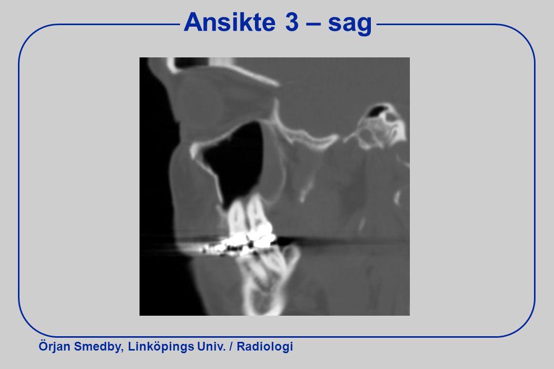 Örjan Smedby, Linköpings Univ. / Radiologi Ansikte 3 – sag