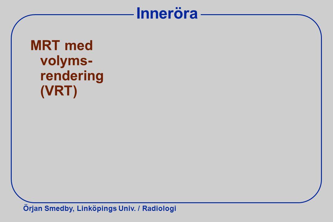 Örjan Smedby, Linköpings Univ. / Radiologi Inneröra MRT med volyms- rendering (VRT)