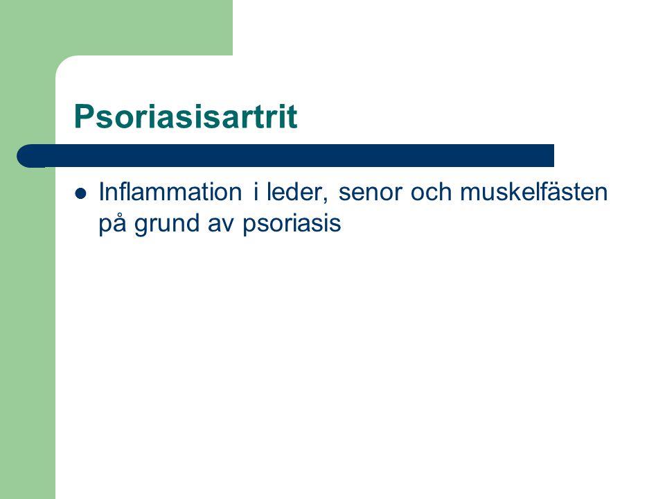 Psoriasisartrit Inflammation i leder, senor och muskelfästen på grund av psoriasis