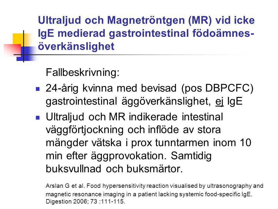Ultraljud och Magnetröntgen (MR) vid icke IgE medierad gastrointestinal födoämnes- överkänslighet Fallbeskrivning: 24-årig kvinna med bevisad (pos DBP