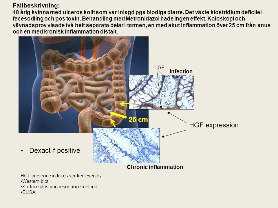 VC/akutklin handläggning Patientflöde utan Dexact-f strip Diarré Utredning isolering Labtest 1-3 dagar I bästa fall hemma efter 3-4 dagar Idag på Universitetssjukhus om metoden är uppsatt -Faeces odling 1 – 3 d -Cyst och mask ägg< 1d -PCR (Viral/Bacterial)1 – 2 d -Faeces Hb < 1 d -Calprotectin (Inflammation) 1 d -LAMP (Clostridium Rapid Test) 1 d -Clostridium Toxin Test 1 d