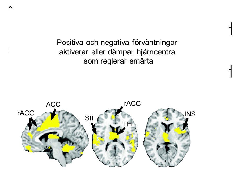 Positiva och negativa förväntningar aktiverar eller dämpar hjärncentra som reglerar smärta
