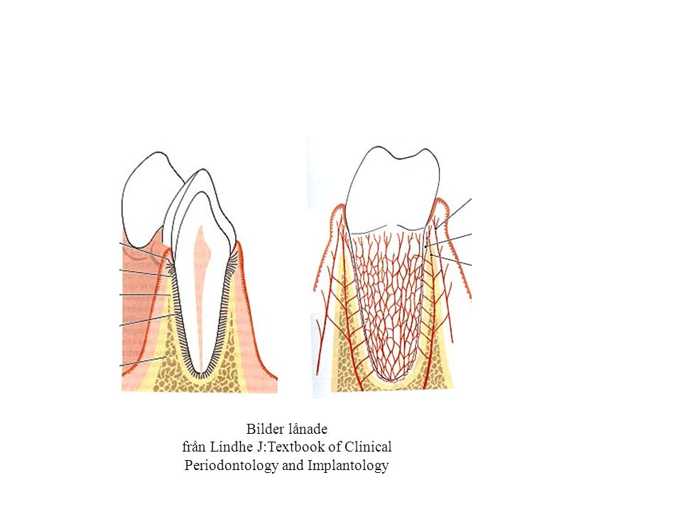 Bilder lånade från Lindhe J:Textbook of Clinical Periodontology and Implantology