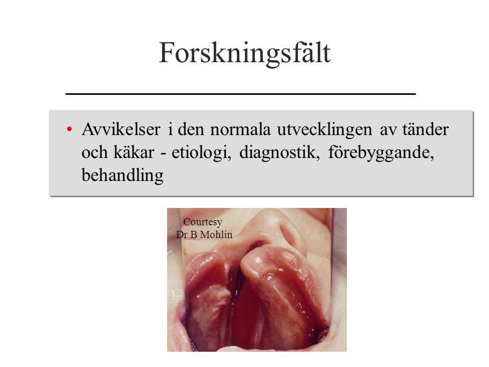 Forskningsfält Avvikelser i den normala utvecklingen av tänder och käkar - etiologi, diagnostik, förebyggande, behandling Courtesy Dr B Mohlin