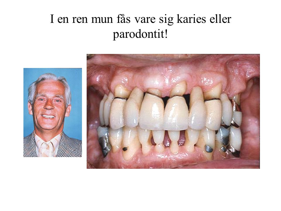 I en ren mun fås vare sig karies eller parodontit!
