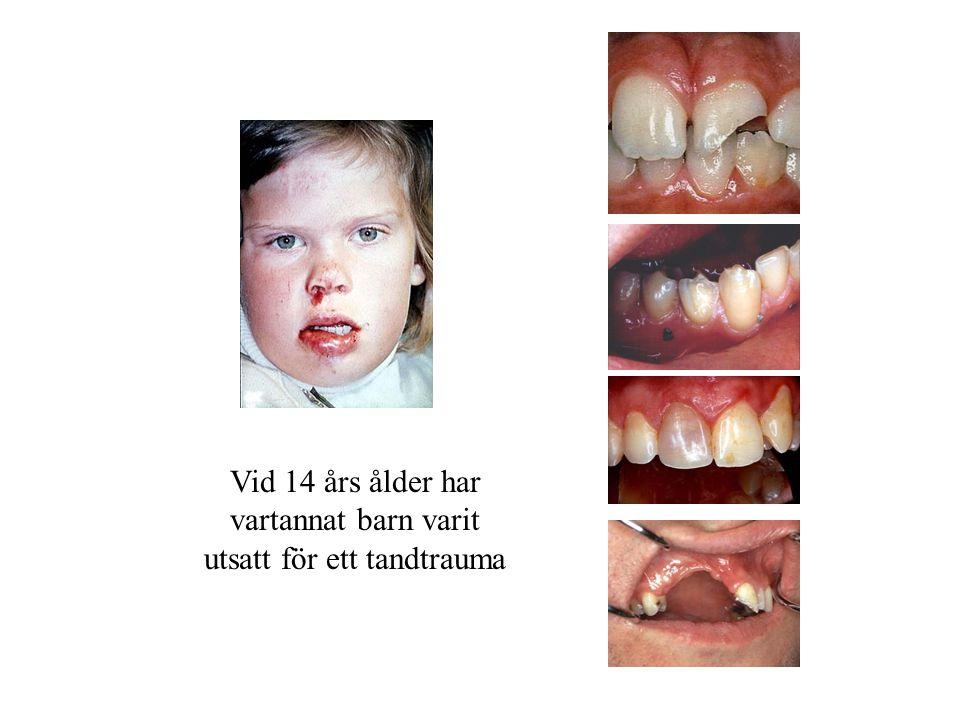 Vid 14 års ålder har vartannat barn varit utsatt för ett tandtrauma