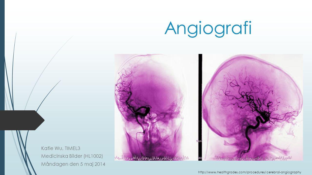 Angiografi Katie Wu, TIMEL3 Medicinska Bilder (HL1002) Måndagen den 5 maj 2014 http://www.healthgrades.com/procedures/cerebral-angiography