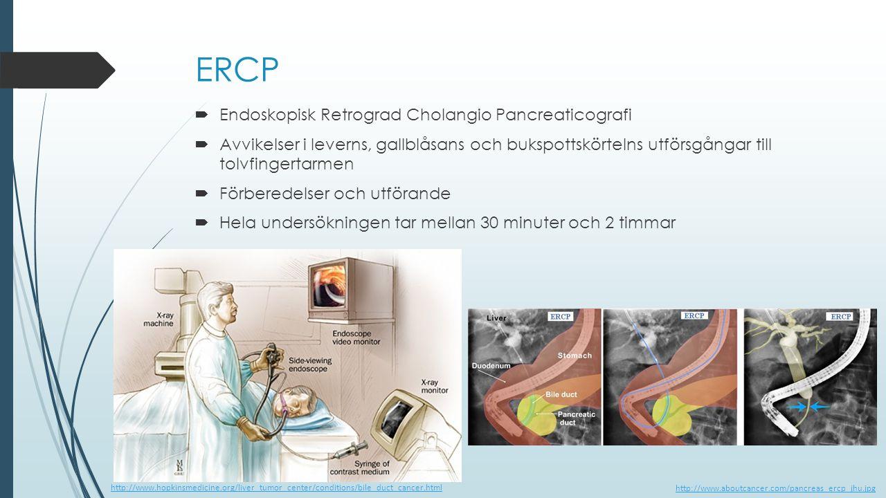 ERCP  Endoskopisk Retrograd Cholangio Pancreaticografi  Avvikelser i leverns, gallblåsans och bukspottskörtelns utförsgångar till tolvfingertarmen 