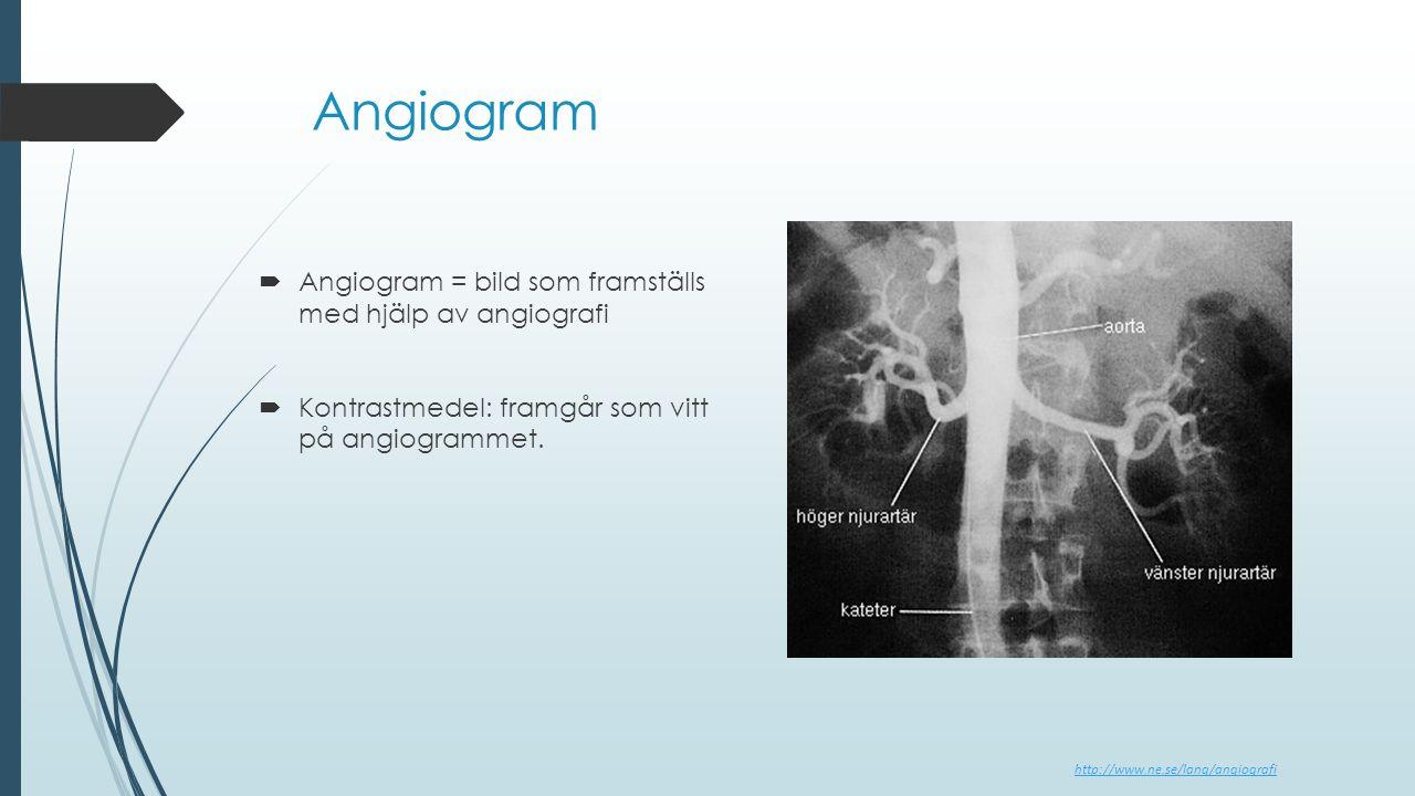 Angiogram  Angiogram = bild som framställs med hjälp av angiografi  Kontrastmedel: framgår som vitt på angiogrammet. http://www.ne.se/lang/angiograf