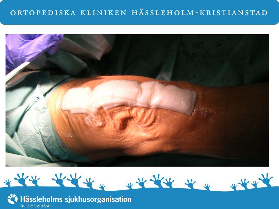 Uppvakning Omlindning efter 3 – 4 timmar Kontroll av sår Avlastning av hälar i reposestövlar