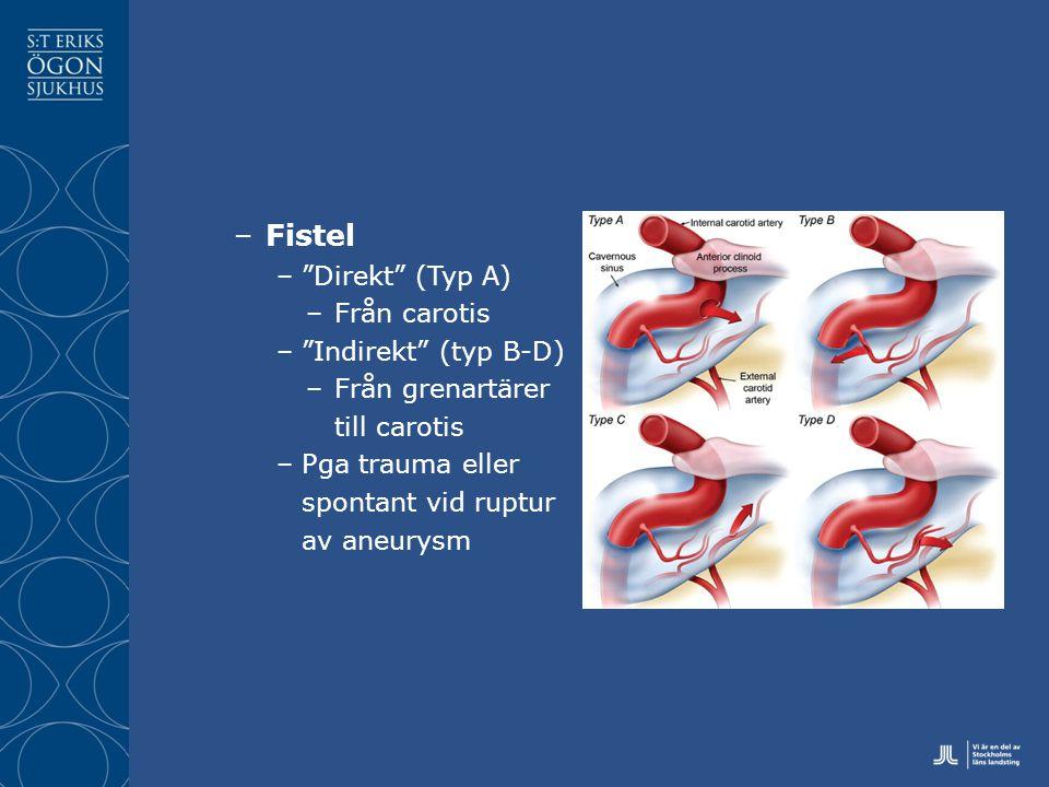 –Fistel – Direkt (Typ A) –Från carotis – Indirekt (typ B-D) –Från grenartärer till carotis –Pga trauma eller spontant vid ruptur av aneurysm