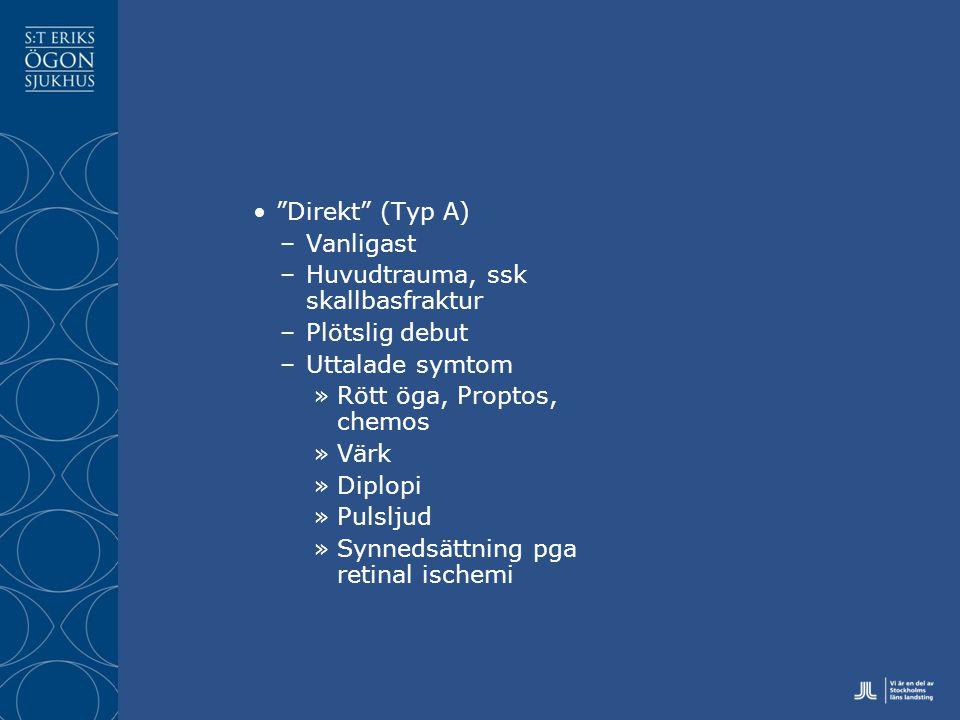 Direkt (Typ A) –Vanligast –Huvudtrauma, ssk skallbasfraktur –Plötslig debut –Uttalade symtom »Rött öga, Proptos, chemos »Värk »Diplopi »Pulsljud »Synnedsättning pga retinal ischemi