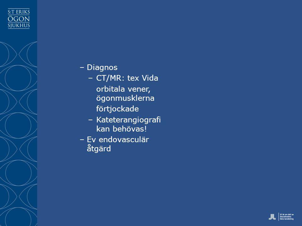 –Diagnos –CT/MR: tex Vida orbitala vener, ögonmusklerna förtjockade –Kateterangiografi kan behövas.
