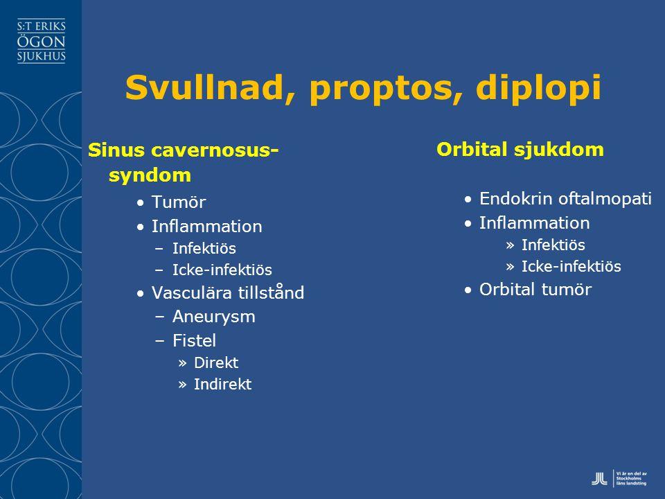 Svullnad, proptos, diplopi Sinus cavernosus- syndom Tumör Inflammation –Infektiös –Icke-infektiös Vasculära tillstånd –Aneurysm –Fistel »Direkt »Indirekt Orbital sjukdom Endokrin oftalmopati Inflammation »Infektiös »Icke-infektiös Orbital tumör