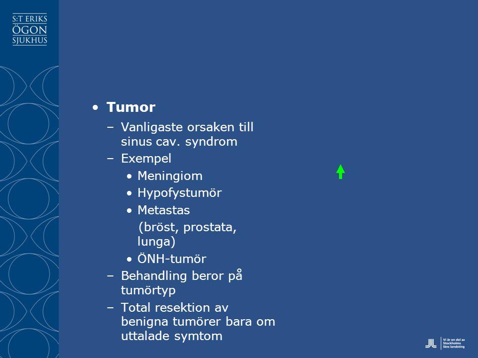 Tumor –Vanligaste orsaken till sinus cav.