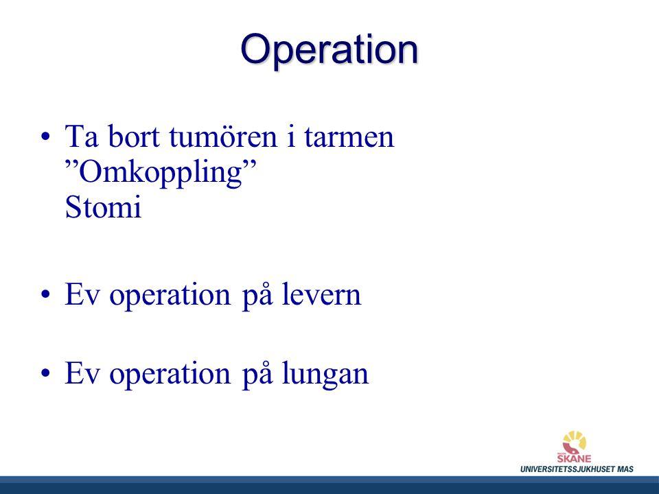 UNIVERSITETSSJUKHUSET MAS Ta bort tumören i tarmen Omkoppling Stomi Ev operation på levern Ev operation på lungan Operation