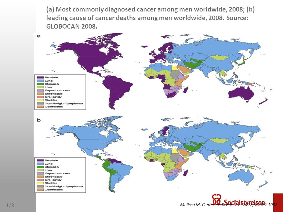 (a) Most commonly diagnosed cancer among men worldwide, 2008; (b) leading cause of cancer deaths among men worldwide, 2008. Source: GLOBOCAN 2008. Mel