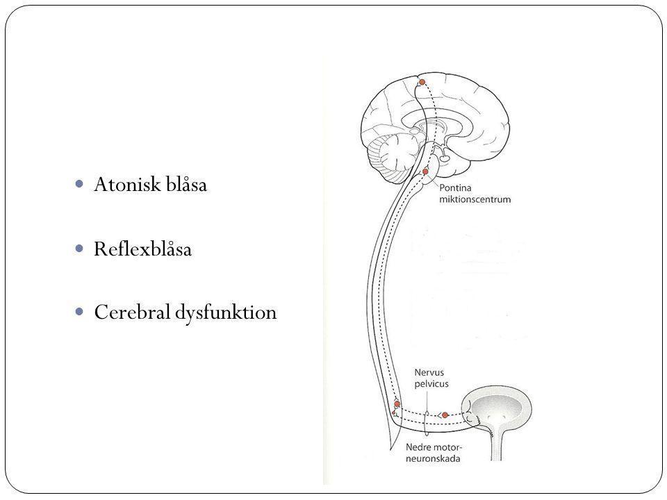 Atonisk blåsa Reflexblåsa Cerebral dysfunktion