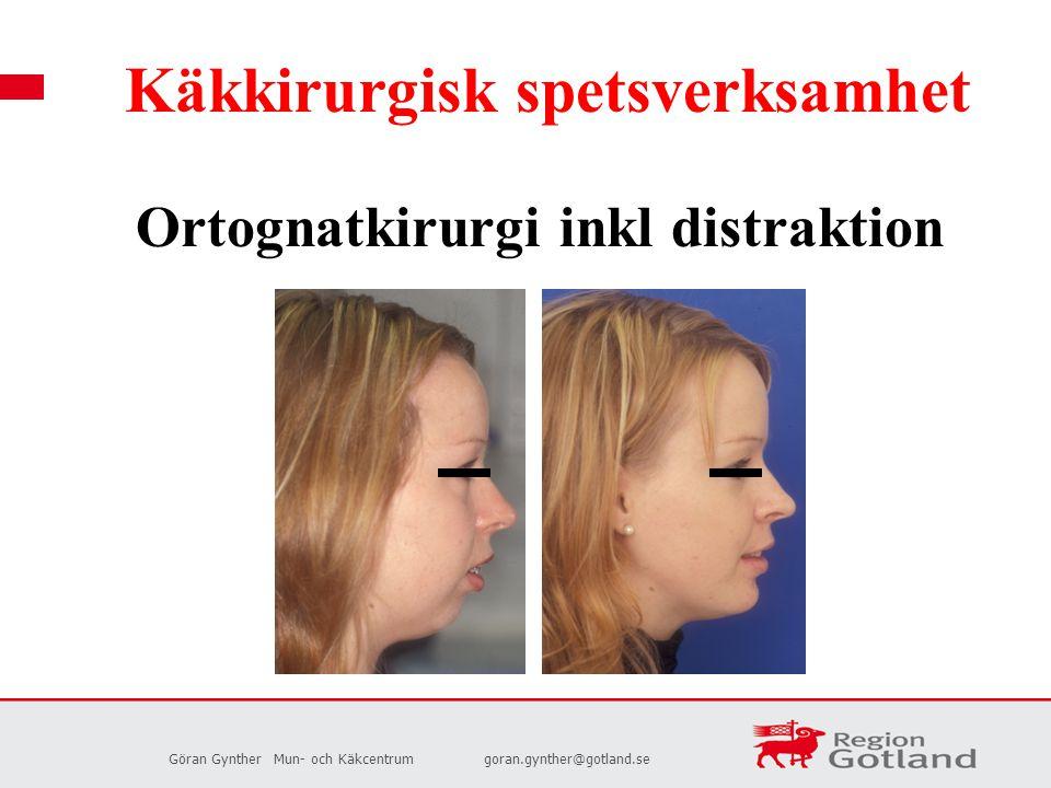 Göran GyntherMun- och Käkcentrumgoran.gynther@gotland.se Käkkirurgisk spetsverksamhet Ortognatkirurgi inkl distraktion