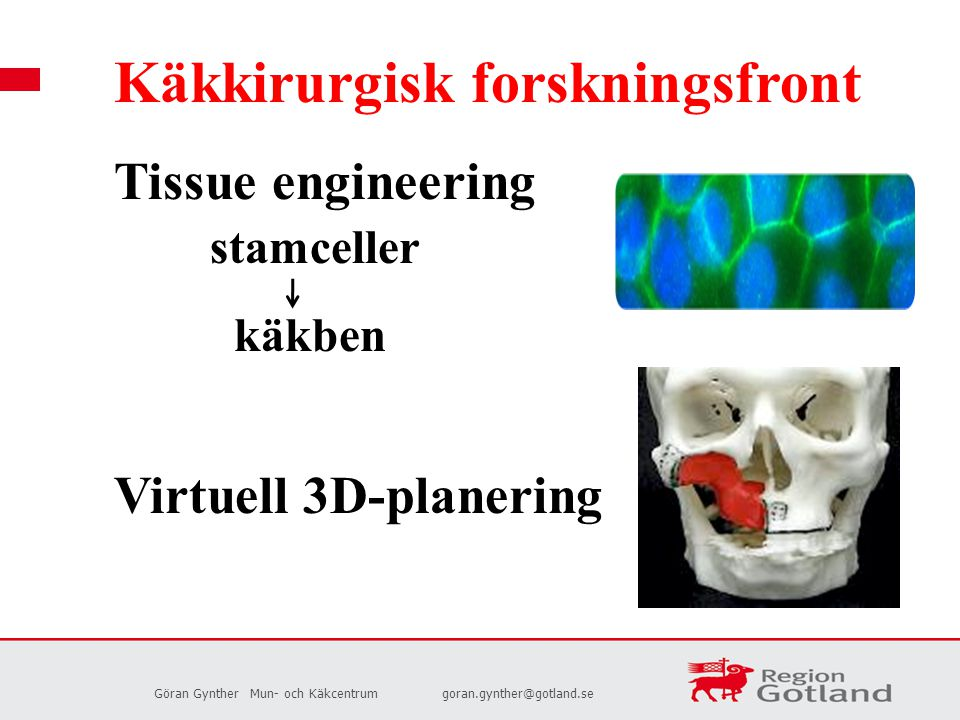 Göran GyntherMun- och Käkcentrumgoran.gynther@gotland.se Käkkirurgisk forskningsfront Tissue engineering stamceller käkben Virtuell 3D-planering