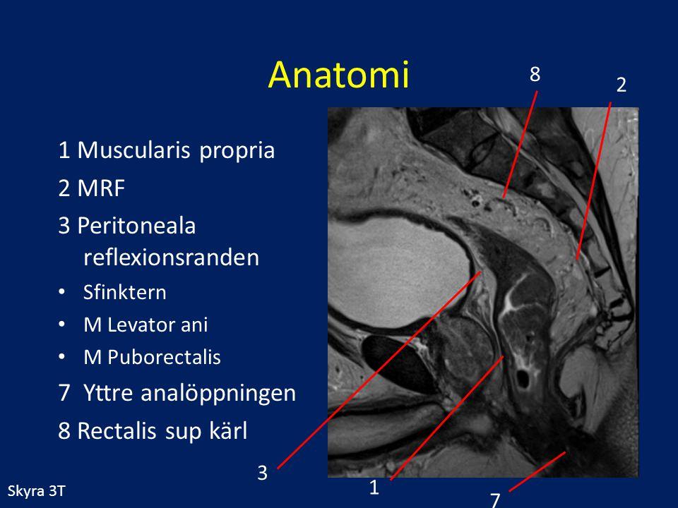 1 Muscularis propria 2 MRF 3 Peritoneala reflexionsranden Sfinktern M Levator ani M Puborectalis 7Yttre analöppningen 8 Rectalis sup kärl 1 2 3 7 8 Sk