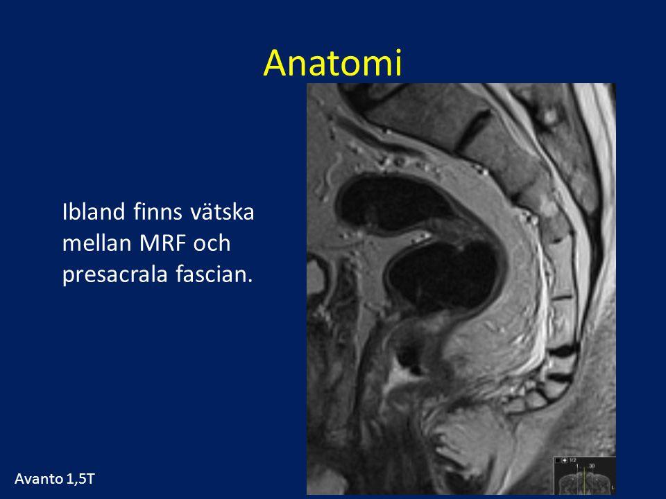 Anatomi Ibland finns vätska mellan MRF och presacrala fascian. Avanto 1,5T