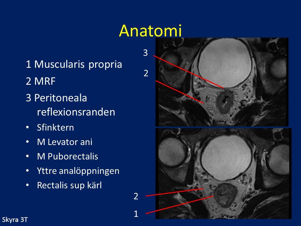 Anatomi 1 Muscularis propria 2 MRF 3 Peritoneala reflexionsranden Sfinktern M Levator ani M Puborectalis Yttre analöppningen Rectalis sup kärl 1 2 3 2
