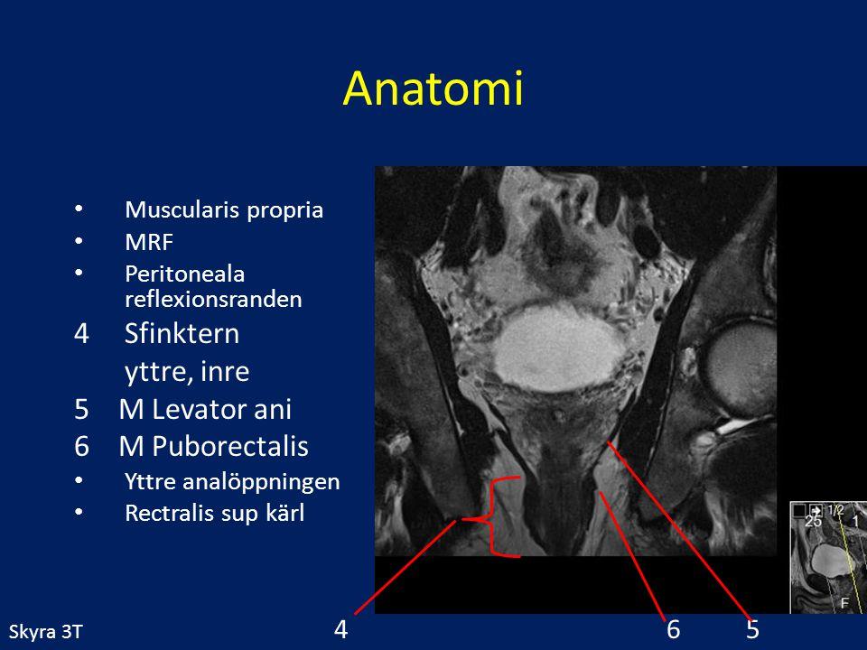 Anatomi Muscularis propria MRF Peritoneala reflexionsranden 4Sfinktern yttre, inre 5 M Levator ani 6 M Puborectalis Yttre analöppningen Rectralis sup