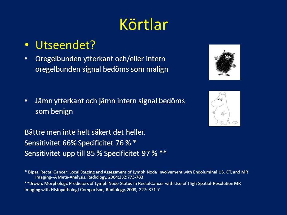 Körtlar Utseendet? Oregelbunden ytterkant och/eller intern oregelbunden signal bedöms som malign Jämn ytterkant och jämn intern signal bedöms som beni