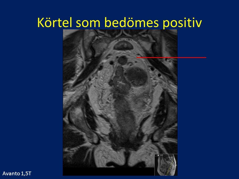 Körtel som bedömes positiv Avanto 1,5T