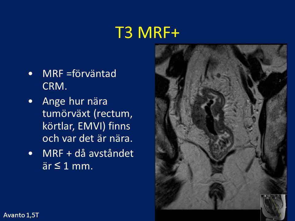 T3 MRF+ MRF =förväntad CRM. Ange hur nära tumörväxt (rectum, körtlar, EMVI) finns och var det är nära. MRF + då avståndet är ≤ 1 mm. Avanto 1,5T