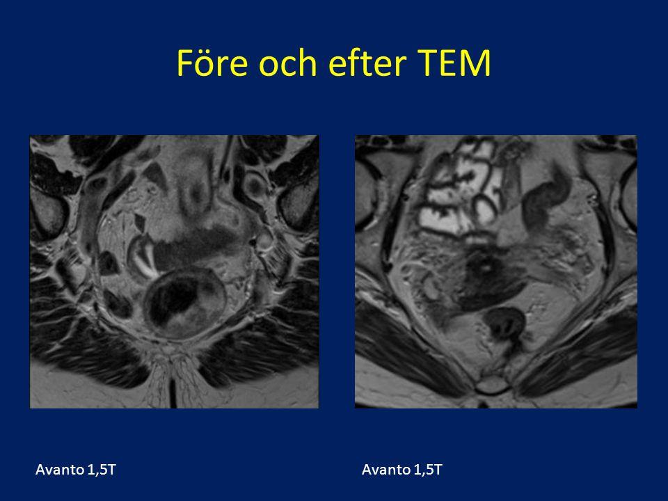 Före och efter TEM Avanto 1,5T