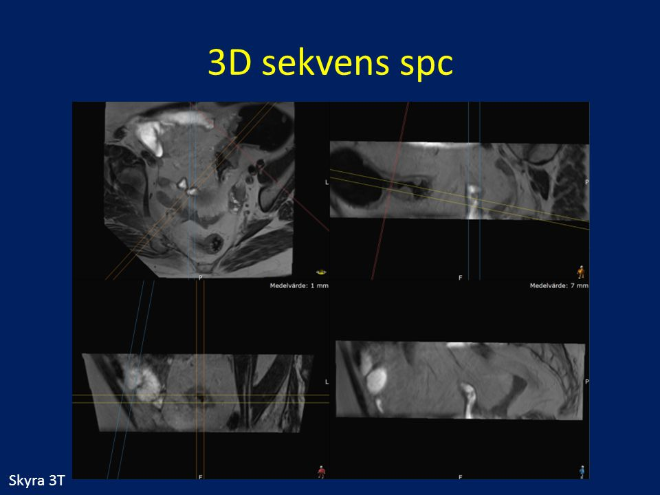 3D sekvens spc Skyra 3T
