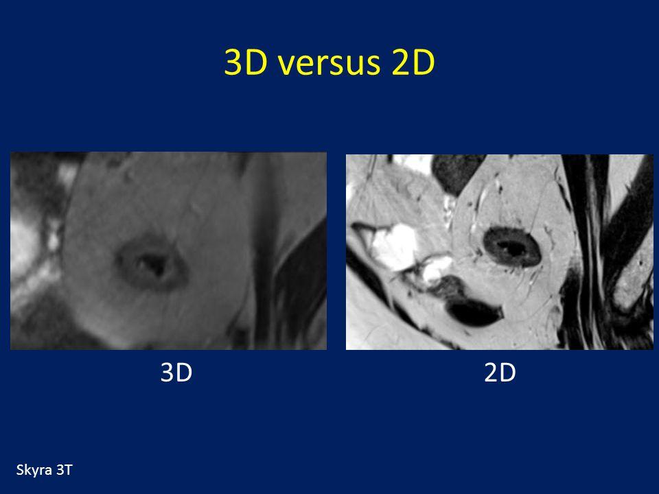 3D versus 2D 3D2D Skyra 3T