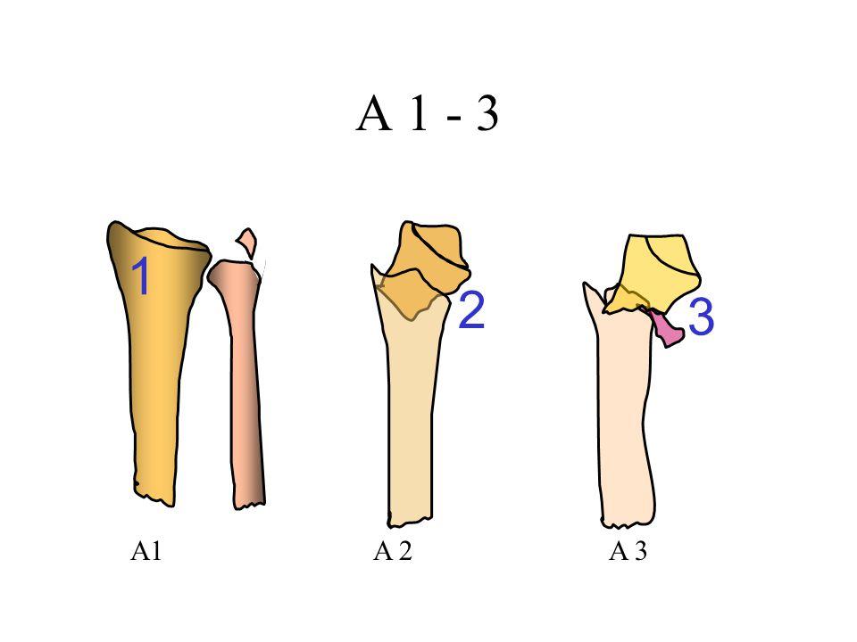 A 1 - 3 A1A 2A 3 1 2 3