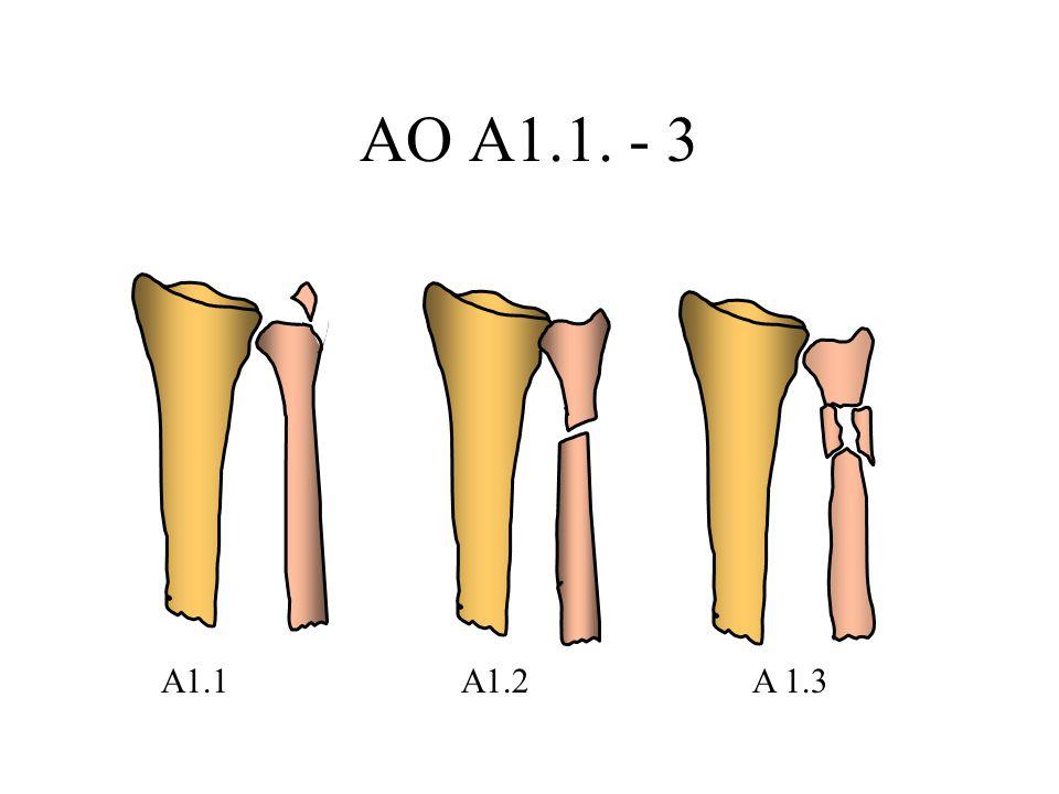 AO A1.1. - 3 A1.1A1.2A 1.3