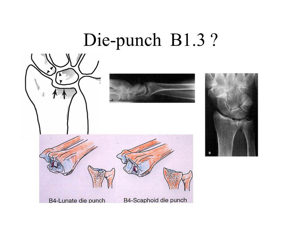 Die-punch B1.3 ?
