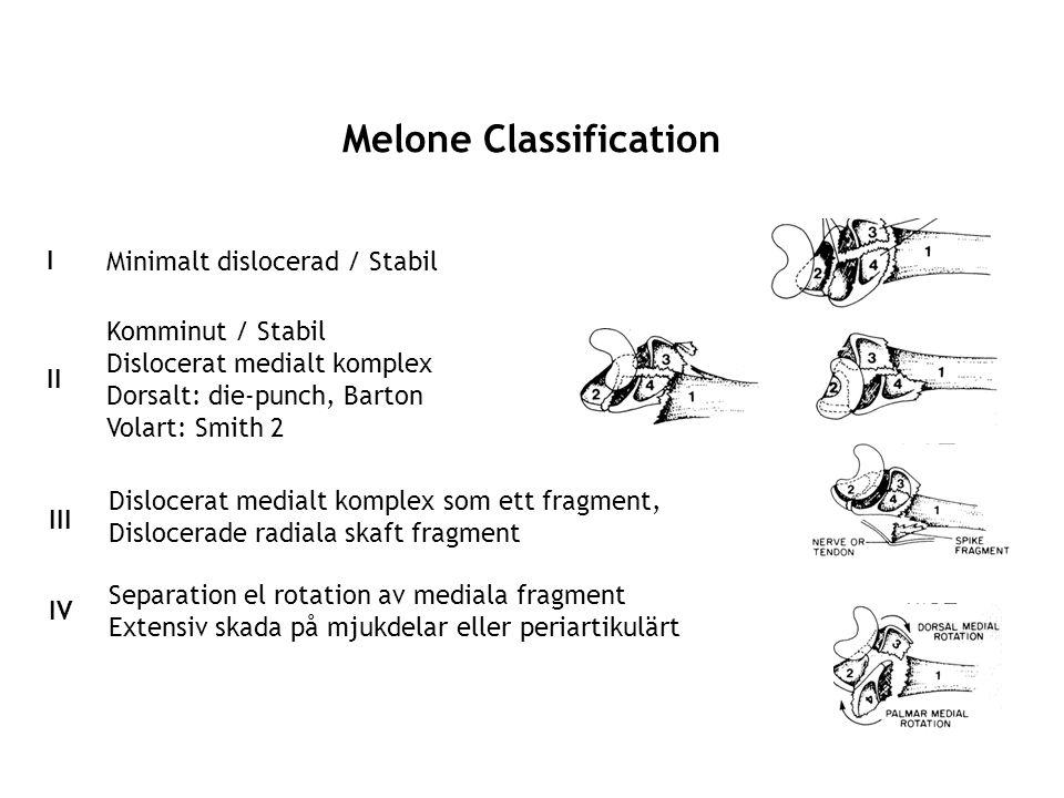 Melone Classification I Minimalt dislocerad / Stabil II Komminut / Stabil Dislocerat medialt komplex Dorsalt: die-punch, Barton Volart: Smith 2 III Di