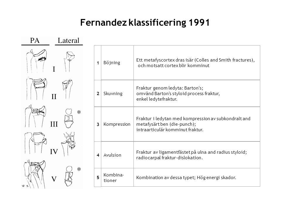 Fernandez klassificering 1991 1 Böjning Ett metafyscortex dras isär (Colles and Smith fractures), och motsatt cortex blir komminut 2 Skuvning Fraktur