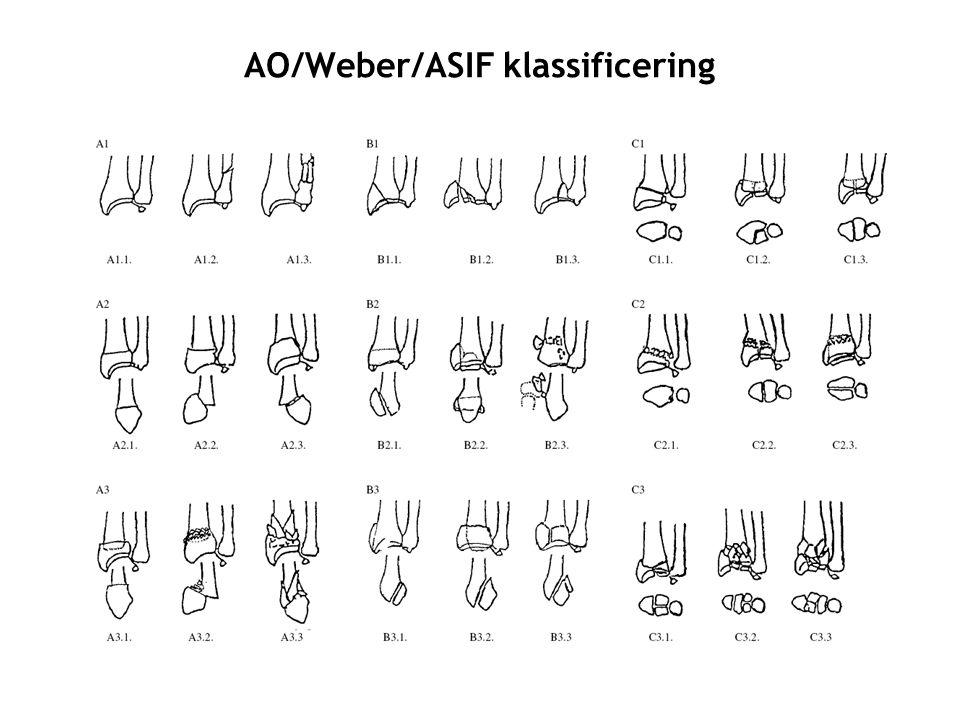 AO/Weber/ASIF klassificering