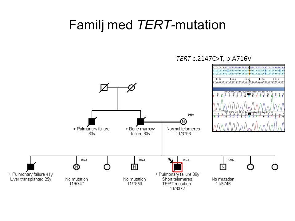 Familj med TERT-mutation TERT c.2147C>T, p.A716V