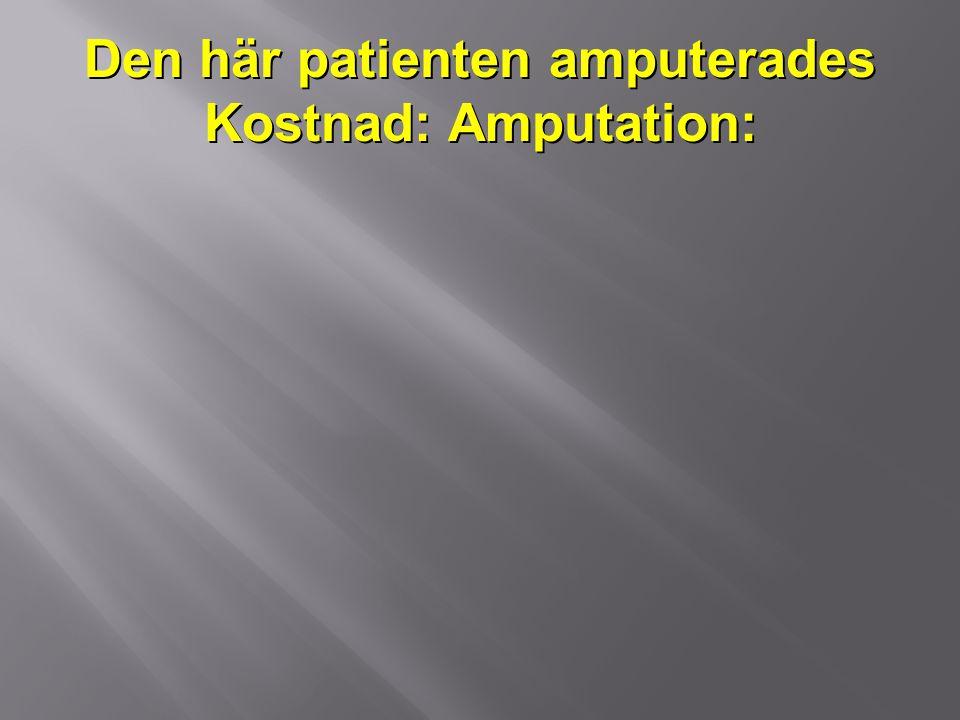 Den här patienten amputerades Kostnad: Amputation:
