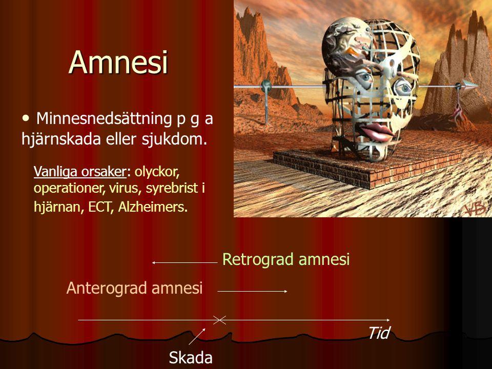 Amnesi Amnesi Minnesnedsättning p g a hjärnskada eller sjukdom. Vanliga orsaker: olyckor, operationer, virus, syrebrist i hjärnan, ECT, Alzheimers. Re