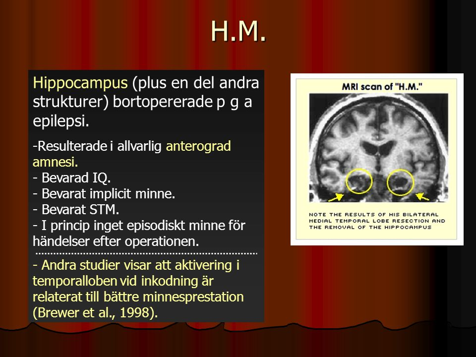 H.M. Hippocampus (plus en del andra strukturer) bortopererade p g a epilepsi. -Resulterade i allvarlig anterograd amnesi. - Bevarad IQ. - Bevarat impl